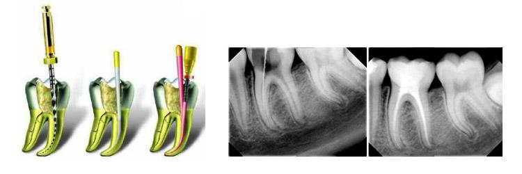 Endodoncia dental en clínica en Santomera