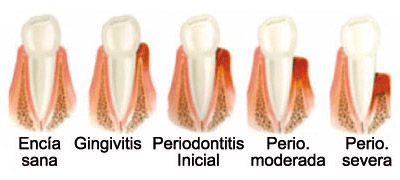 Periodoncia dental en Santomera