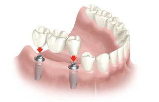 Prótesis dentales fijas en Santomera Murcia