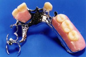Prótesis dentales removibles en Santomera Murcia