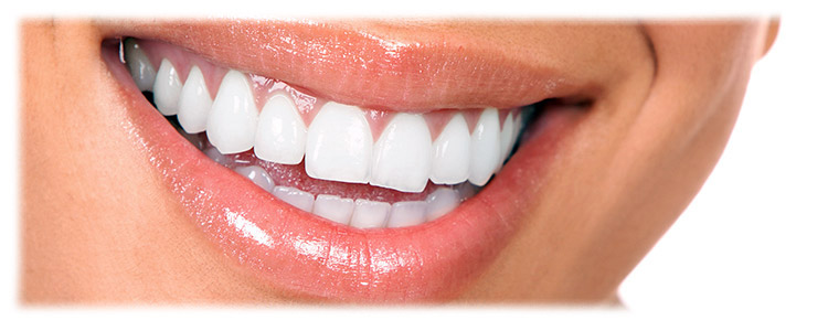 Estética dental y blanqueamiento dental Santomera