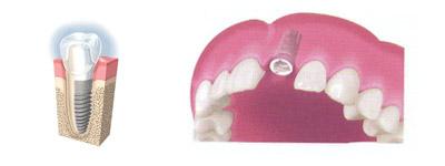 Implante dental en clínica Santomera