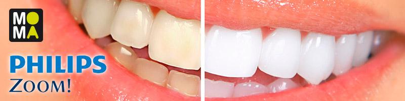 Blanqueamiento dental clínica Santomera Murcia