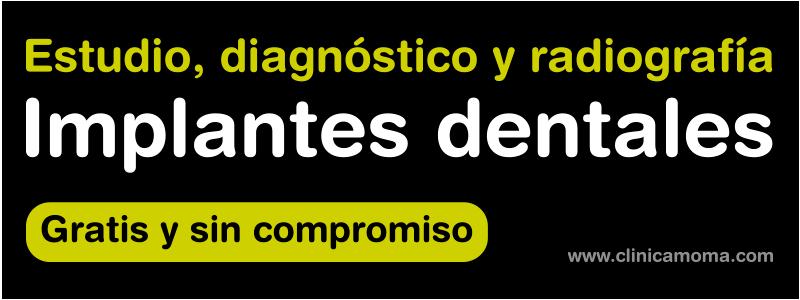 Implantes dentales alta gama en clínica dental Santomera Murcia