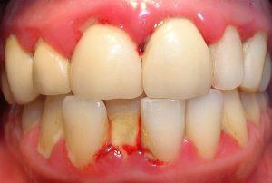 Enfermedad periodontal en paciente con Diabetes Mellitus