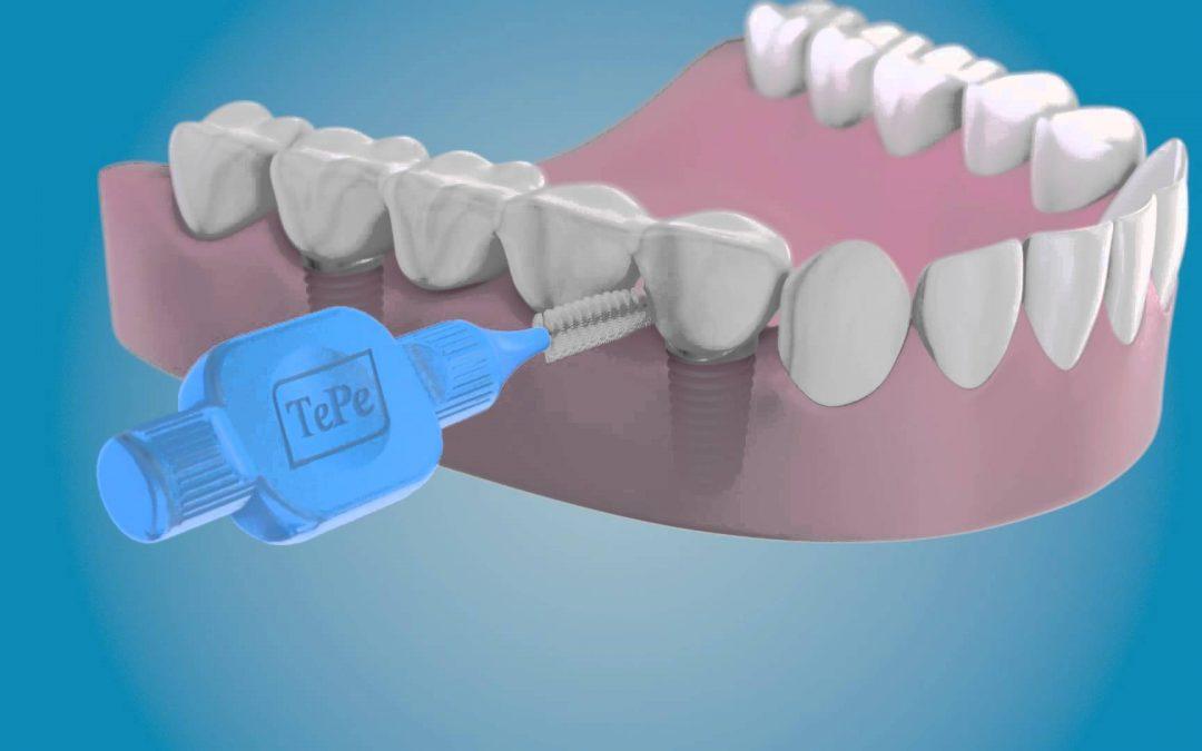 Por qué pueden fallar los implantes dentales